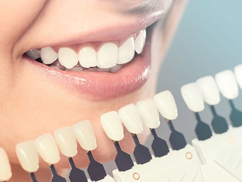 A female patient comparing her tooth shade to other tooth shades for teeth whitening