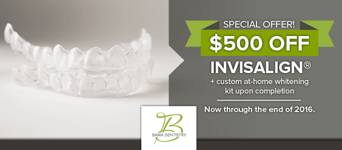Get $500 off Invisalign at Bawa Dental until the end of 2016